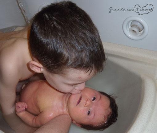 La mia bambina con sindrome di down e suo fratello