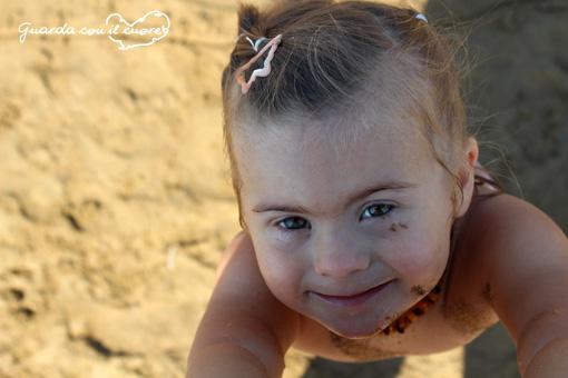 Si può andare in spiaggia con la febbre? - Sindrome di Down - Guarda ...