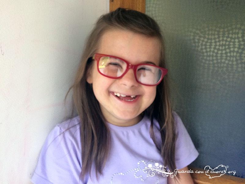 Emma con la sindrome di down