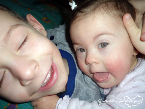 sindrome di down bambina