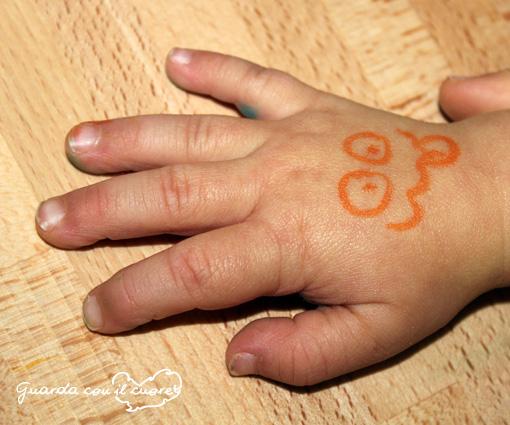 mano bambina con sindrome di down