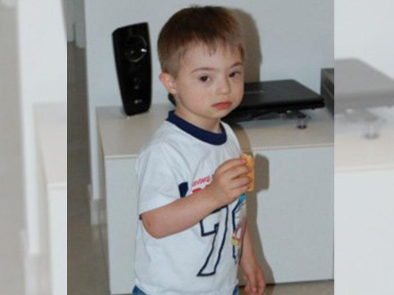 bambino con sindrome di down